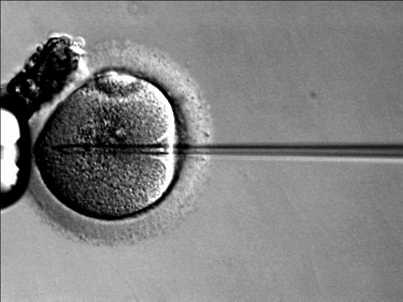 Prenatal testing is on the cutting edge of scientific technology (Credit:wikimedia)